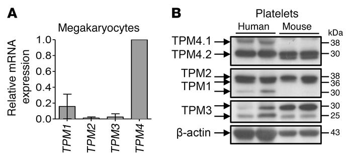 Tropomyosin expression in human and mouse. (A) Multiple TPMs are express...