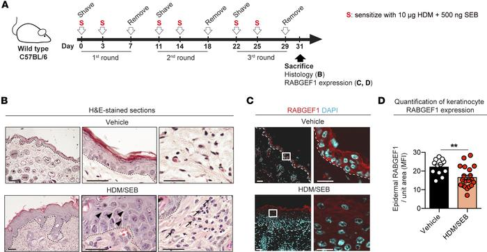 RABGEF1 quantification in HDM/SEB–induced skin inflammatory lesions. (A)...