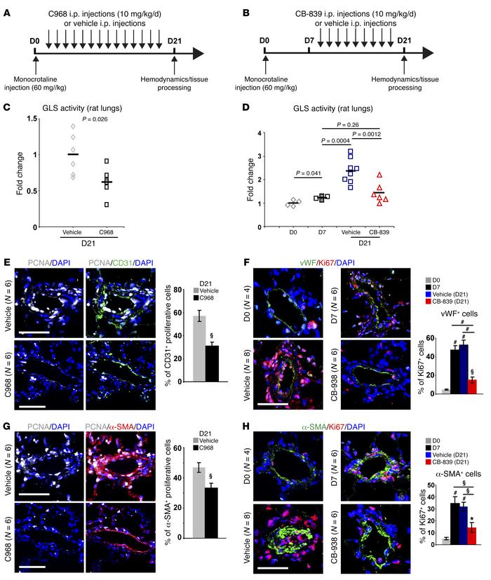 Pharmacologic inhibition of GLS1 in monocrotaline-exposed rats decreases...