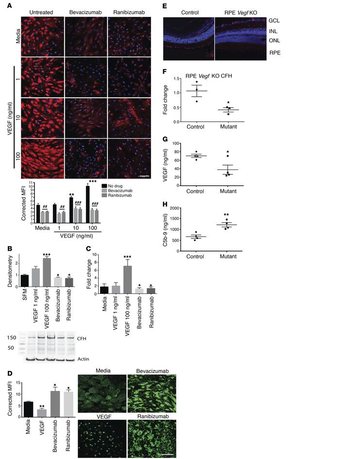 Retinal CFH expression is regulated by VEGF. RPE cells showed a dose-dep...
