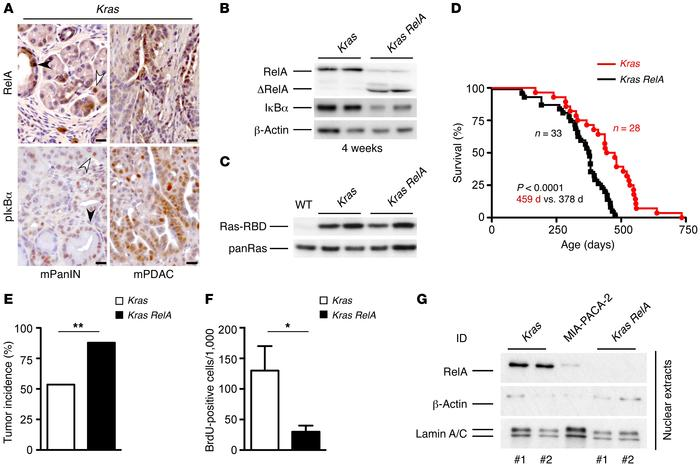 RelA deficiency promotes pancreatic carcinogenesis. (A) IHC analysis of ...