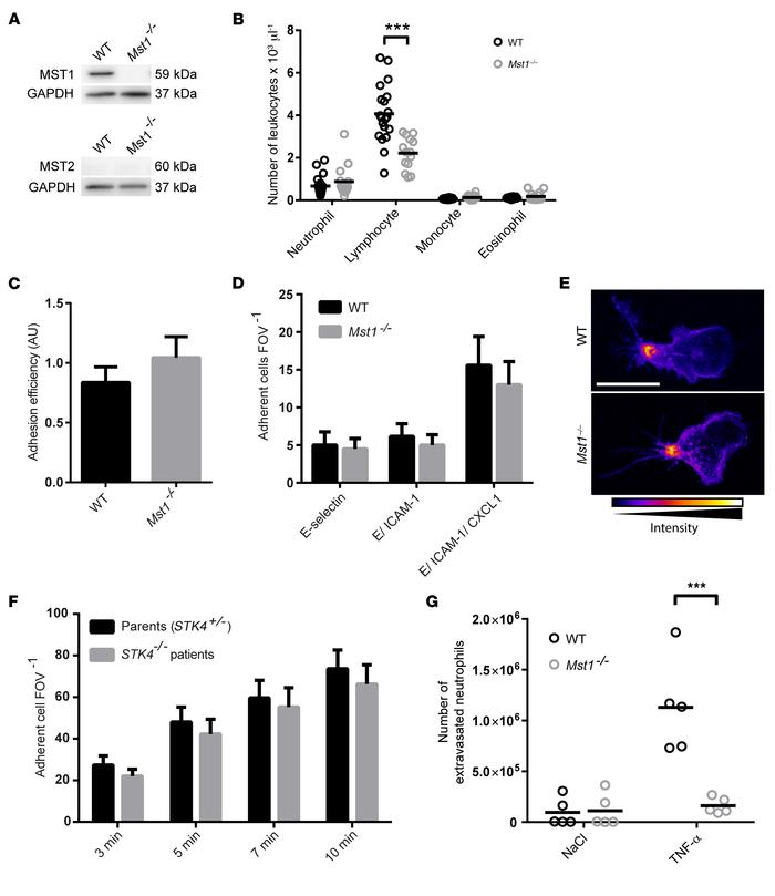 MST1 is dispensable for neutrophil adhesion in humans and mice, but crit...