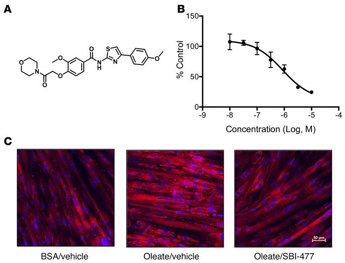 SBI-477 is a small-molecule inhibitor of neutral lipid accumulation in h...