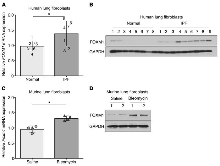 Fibrotic fibroblasts exhibit increased FOXM1 expression. (A and B) Basal...