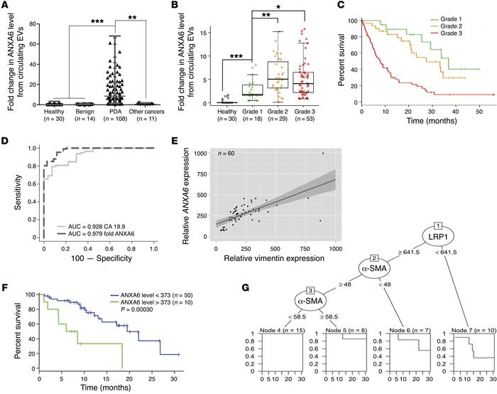 ANXA6+ EVs are a biomarker for pancreatic cancer. (A) Quantification of ...