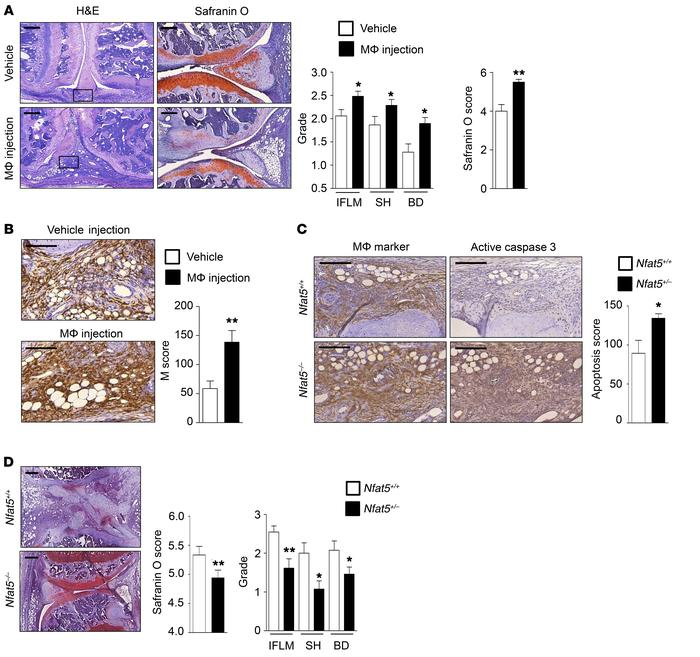 Direct in vivo effect of NFAT5 in macrophages on the progression of arth...