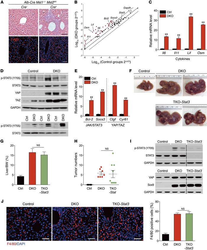 Stat3 ablation in liver failed to alleviate the liver phenotype of DKO ...