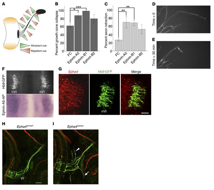 EphA4 is required for normal abducens nerve development. (A) Model of ba...