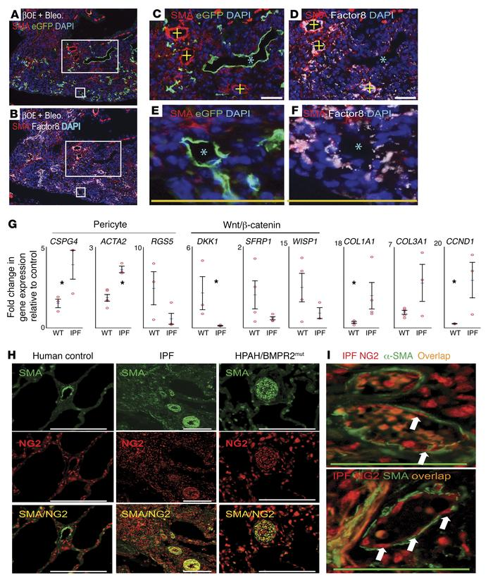 Wnt activation of lung MPCs promotes the formation of abnormal vascular ...