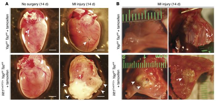 Deletion of epicardial YAP/TAZ results in profound pericardial inflammat...