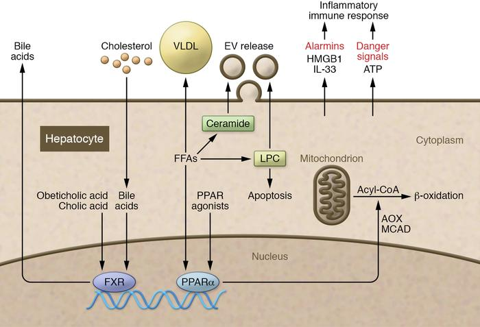 An overview of lipid metabolism in hepatocytes. Hepatocytes become steat...
