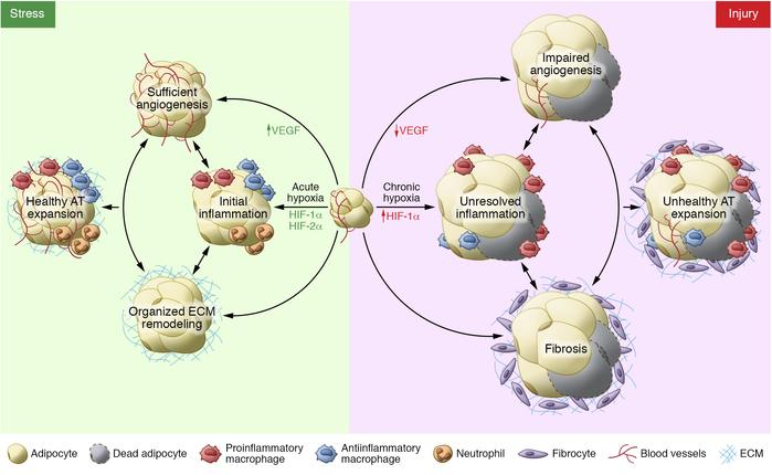 The complex contributions of angiogenesis, inflammation, and fibrosis in...