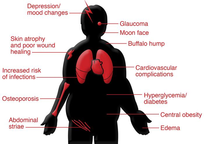 Graphic presentation of GC-associated side effects. GCs can lead to a nu...
