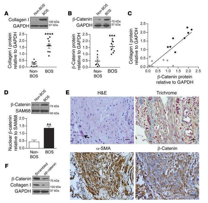Increased MC β-catenin expression in fibrotic human lung allografts. (A ...