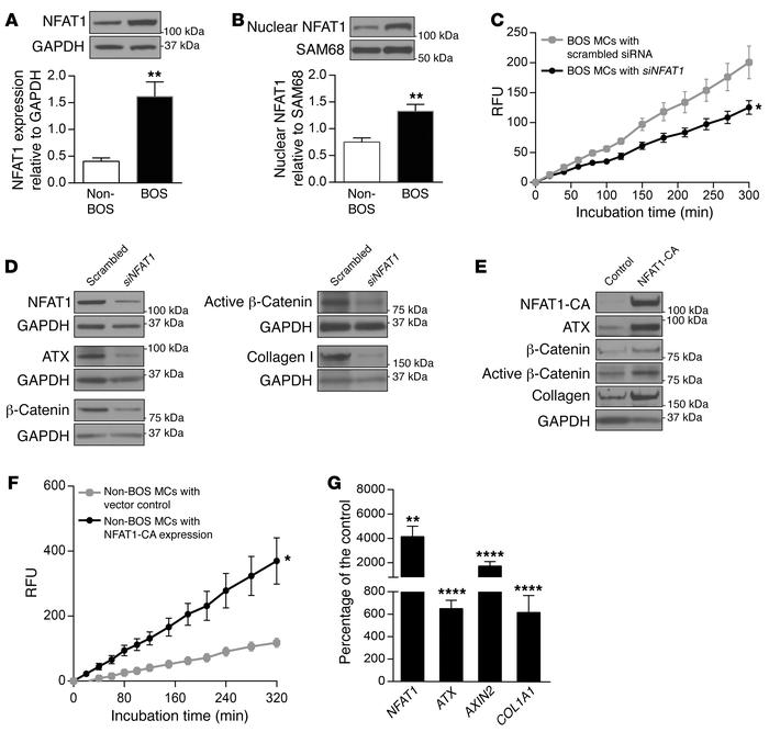 NFAT1 regulates ATX, β-catenin, and collagen I expression in lung MCs. (...