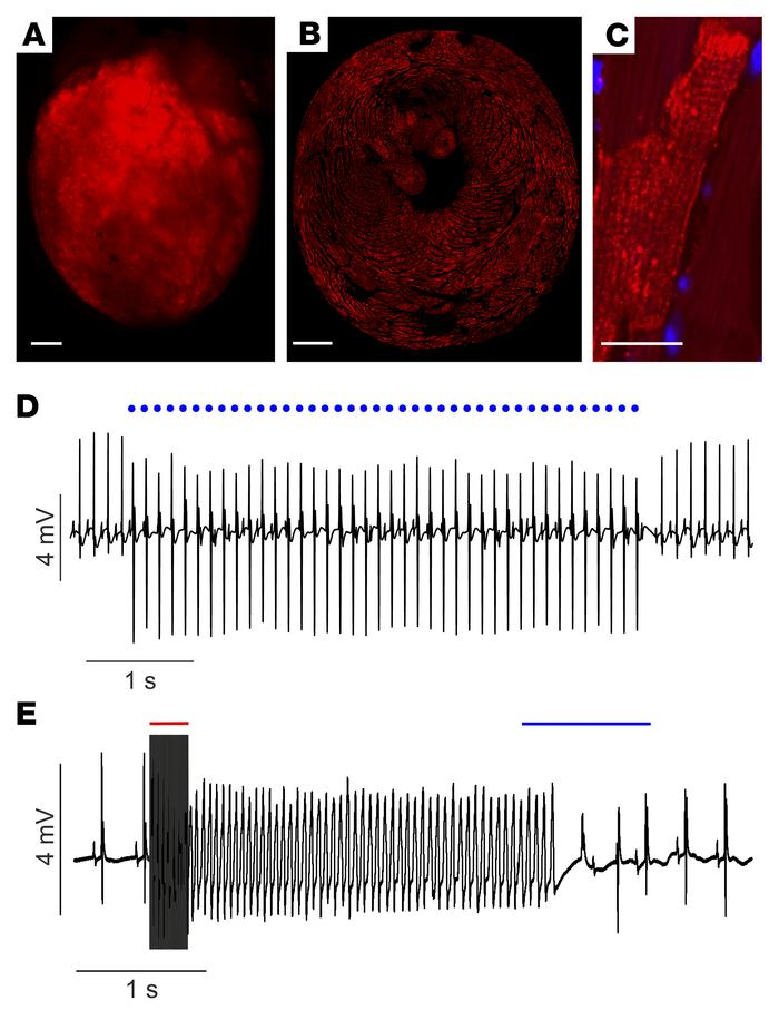 Optogenetic pacing and defibrillation in hearts 1 year after in vivo gen...