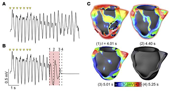 Optogenetic defibrillation in a model of a patient heart with infarct-re...