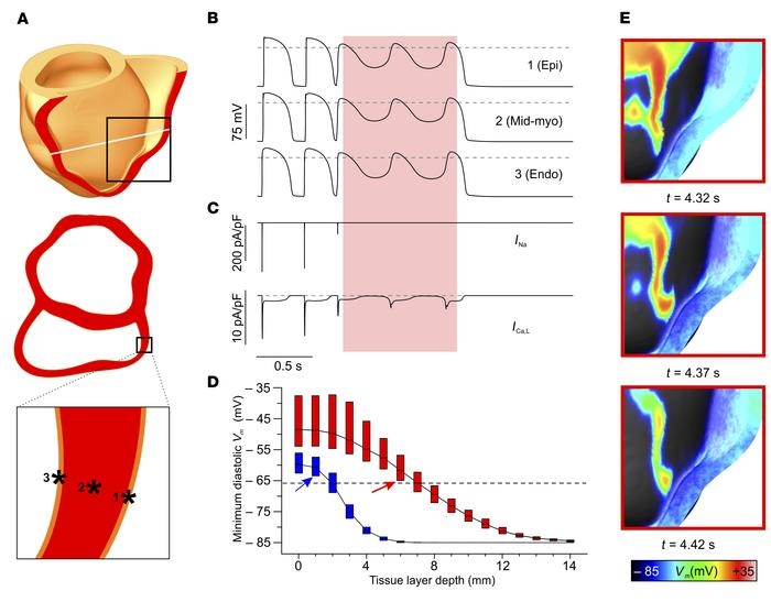 Mechanism of optogenetic defibrillation in the human heart. (A) Illustra...