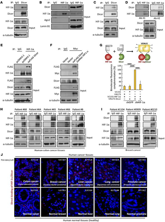 HIF-1α interacts with Dicer in multiple human cancer cell lines and tumo...