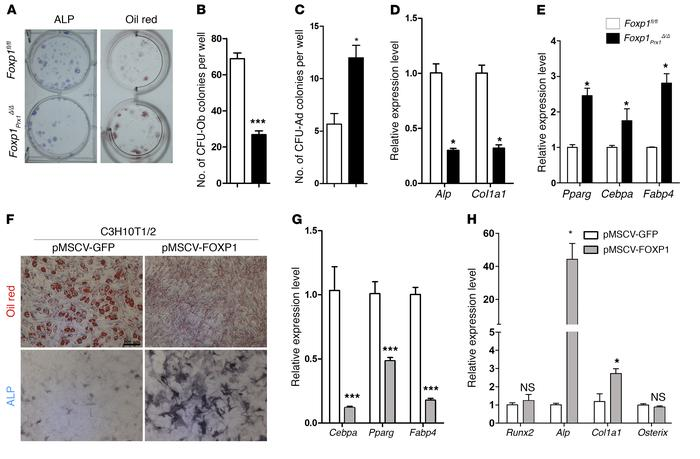 FOXP1 modulates cell-fate choice of MSCs between adipocytes and osteobla...