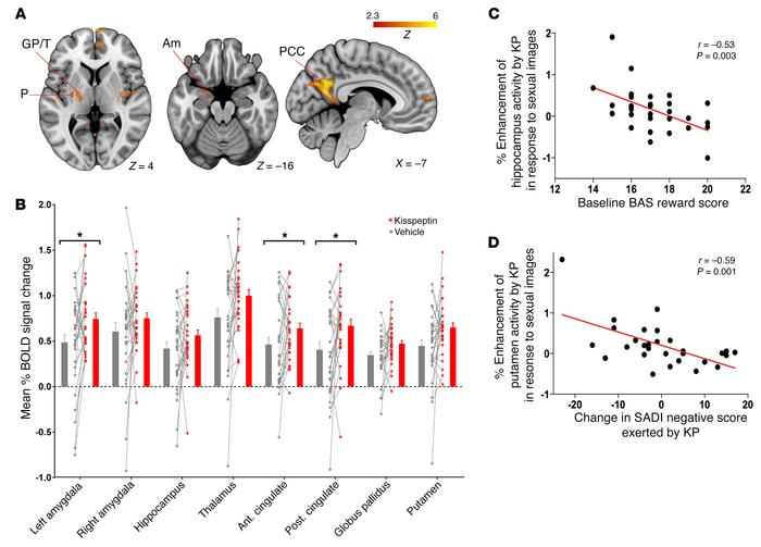 Sexual images, effects of kisspeptin on brain activity, and correlations...