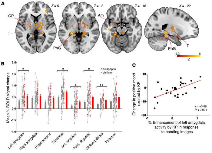 Nonsexual couple-bonding images, effects of kisspeptin on brain activity...