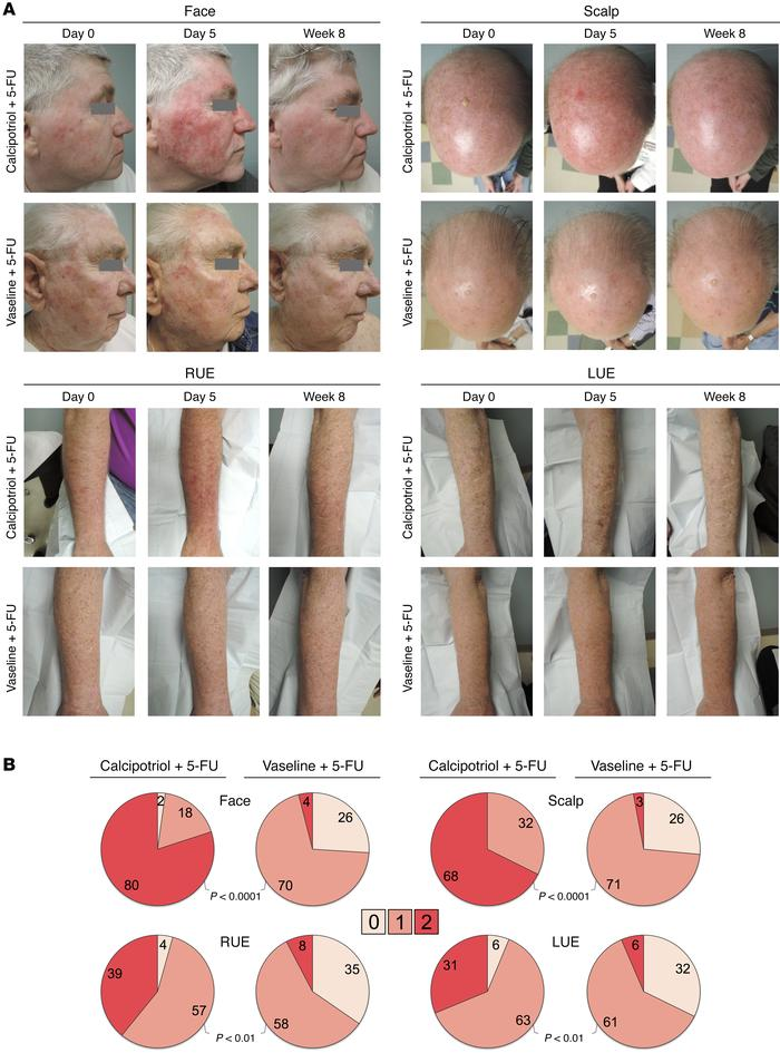 Photographs and clinical evaluation of skin reactions. (A) Representativ...