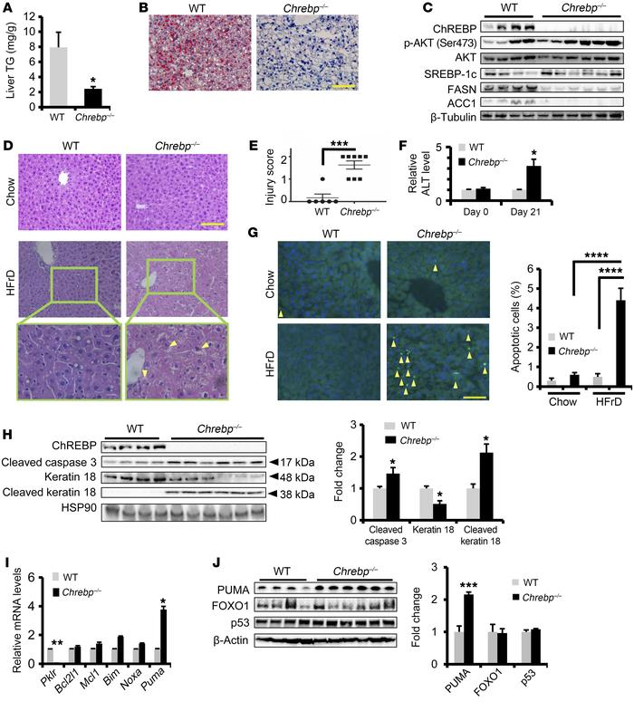 Loss of Chrebp sensitizes mice to HFrD-induced liver injury. Eight-week-...