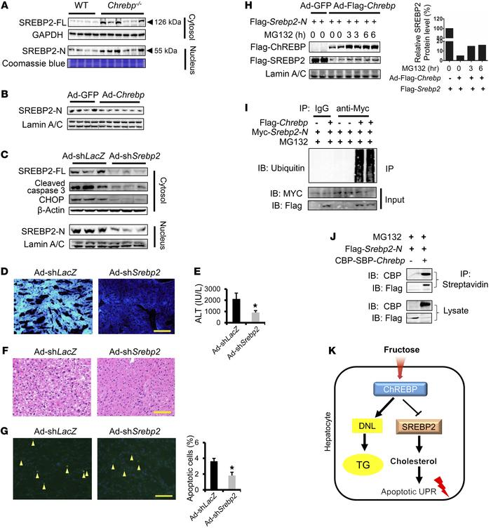 ChREBP blocks HFrD-induced liver injury in part by degrading SREBP2-N to...