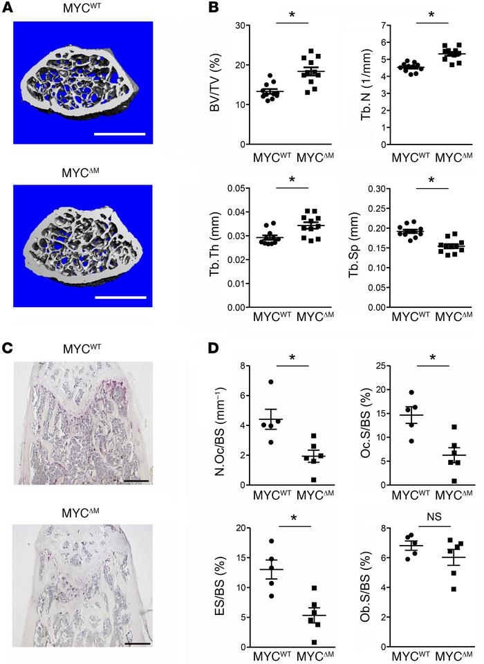 Myeloid-specific MYC-deficient mice have high bone mass. (A and B) μCT a...