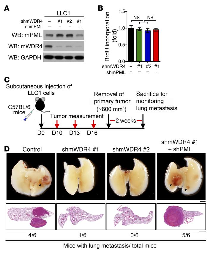 The WDR4/PML axis promotes lung cancer metastasis in a syngeneic mouse m...
