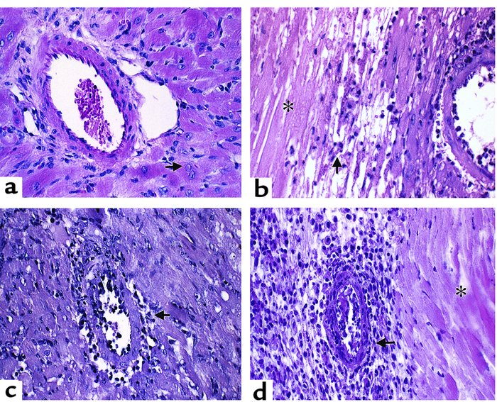 Pathology of murine cardiac allograft rejection: syngeneic graft at day ...