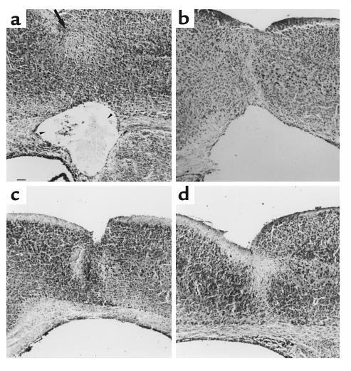 NC exacerbates ibotenate-induced white-matter lesions and the blockade o...