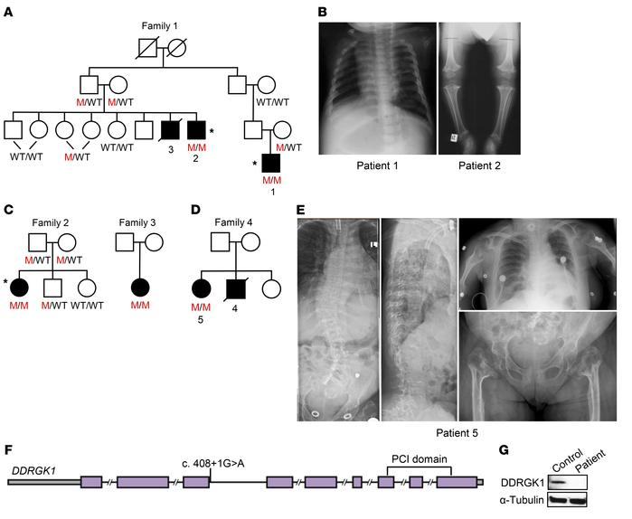 Homozygous DDRGK1 loss-of-function mutation identified in Iraqi Jewish f...