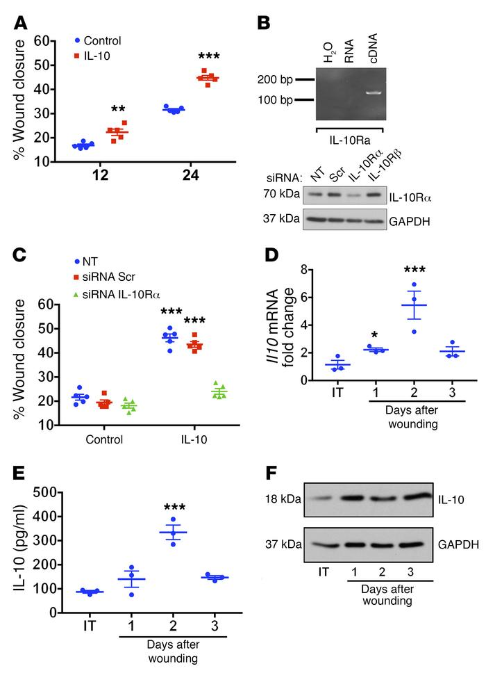IL-10 is synthesized and released as a response to intestinal mucosal in...