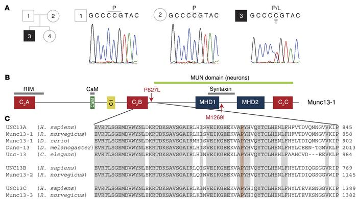 Identification of a single-nucleotide exchange in the UNC13A gene in the...
