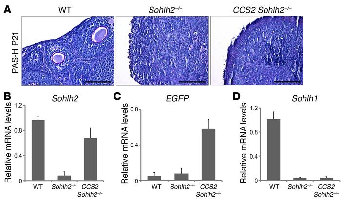 Sohlh2 overexpression with Ddx4 promoter–driven Cre fails to reverse th...