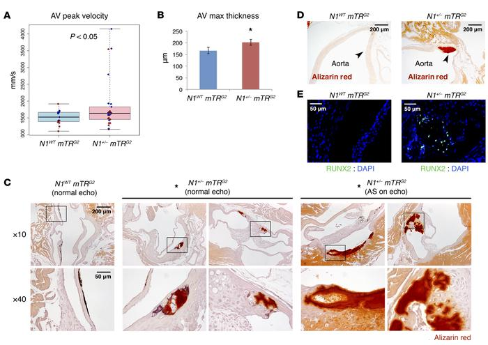 Telomere shortening elicits age-dependent AV calcification in N1+/– mice...