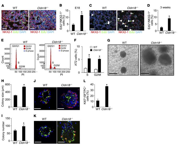 Increased alveolar epithelial type II (AT2) cell proliferation in Cldn18...