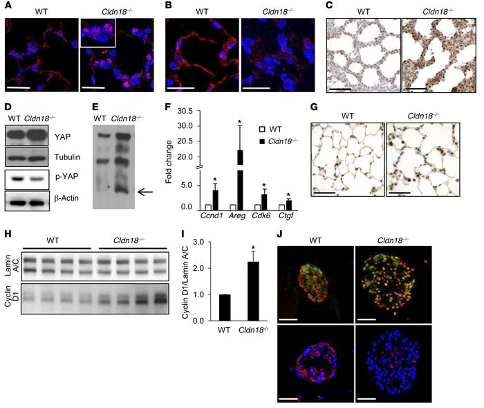 Activation of YAP signaling in whole lung and alveolar epithelial type I...