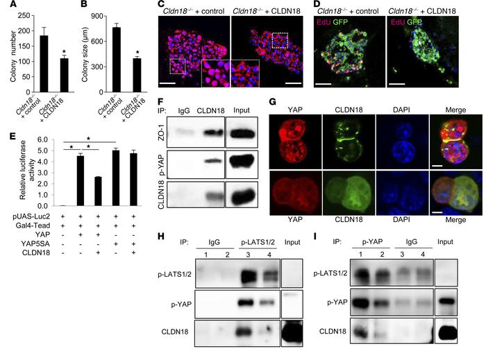 CLDN18 regulates AT2 cell proliferation and YAP activity, and CLDN18 and...