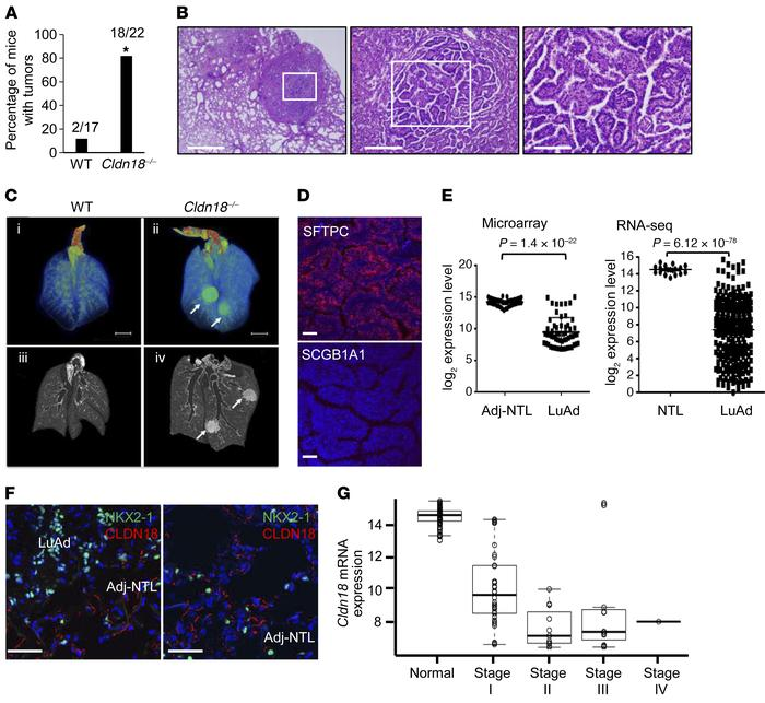 Increased tumor development in aged Cldn18–/– mice. (A) Frequency of lun...