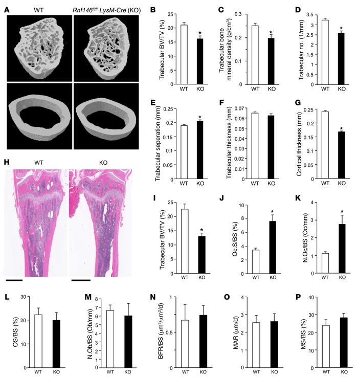 Rnf146fl/fl LysM-Cre mice are osteopenic due to active osteoclastogenes...