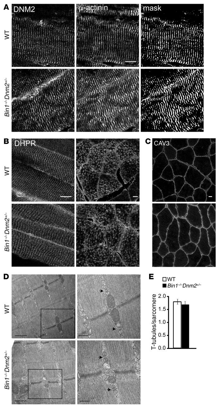 Normal muscle structure and ultrastructure in Bin1–/– Dnm2+/– mice. (A) ...