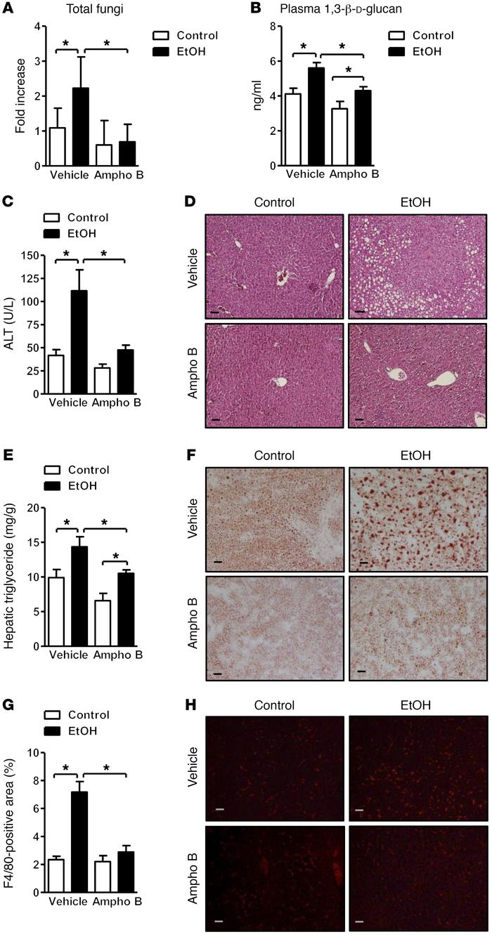 Decreased ethanol-induced liver disease in mice treated with antifungals...