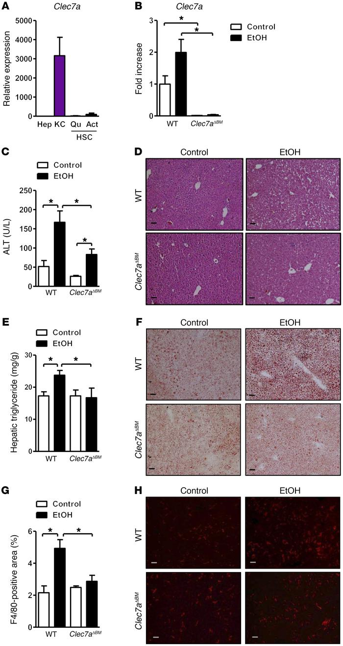 Mice lacking CLEC7A in bone marrow–derived cells are protected from etha...