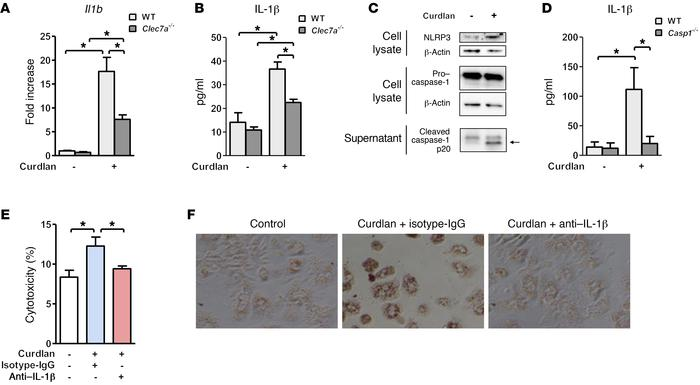 Curdlan induction of IL-1β by Kupffer cells contributes to hepatocyte in...