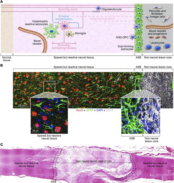 SCI lesions exhibit discrete tissue compartments. (A) Schematic of SCI l...