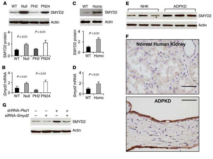 Pkd1 mutant renal epithelial cells and tissues demonstrated increased e...