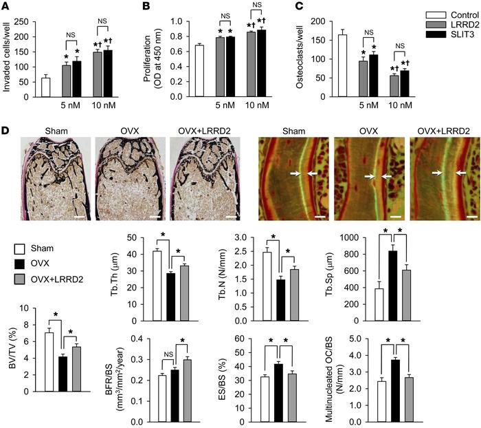 Effect of LRRD2 of human SLIT3 on bone mass in OVX mice. (A) Directional...